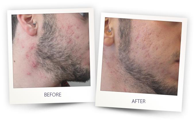 treatment of Acne vulgaris