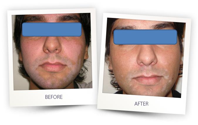 vitiligo skin disease excimer laser treatment