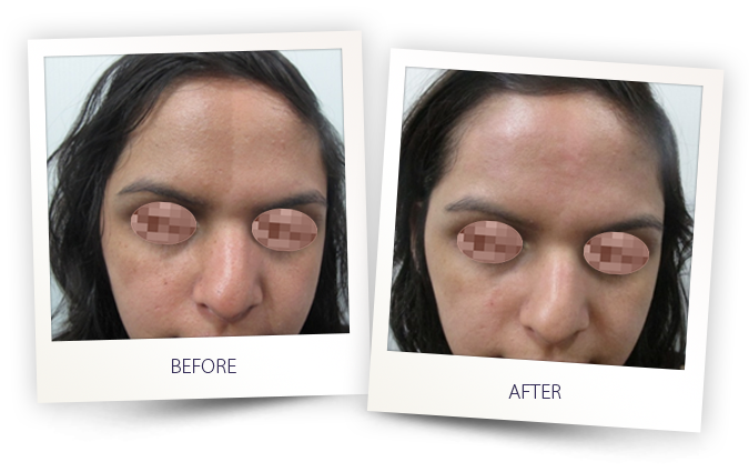 IPL laser treatment for skin hyperpigmentation