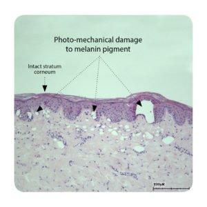 Photo mechanical damage to melanine pigment