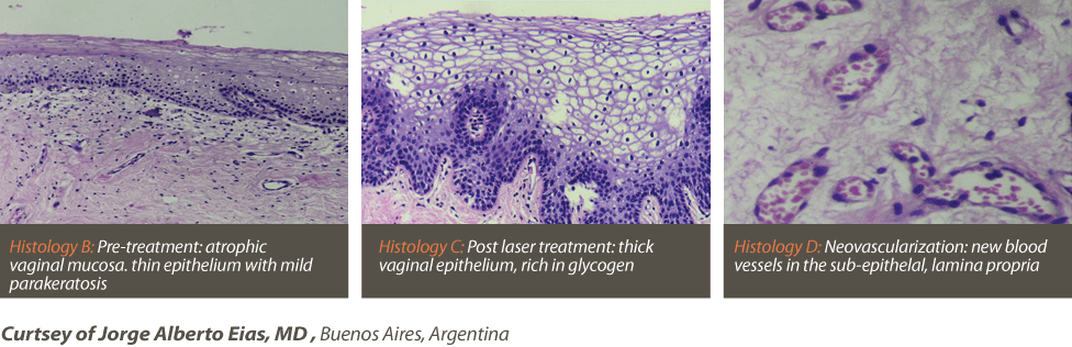 postpartum vaginal tightening