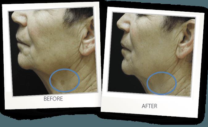 Pigmented lesion skin hyperpigmentation treatment