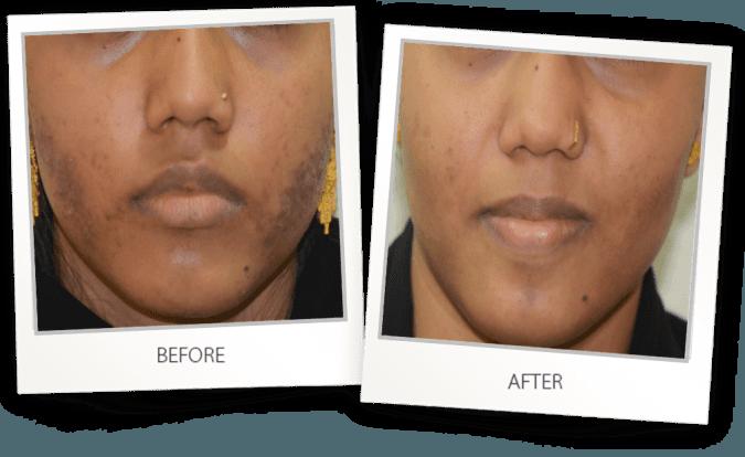 acne and blackheads treatment