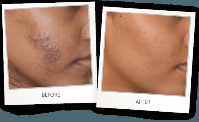 Acne vulgaris and rosacea laser treatment