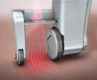 Pixel CO2 roller