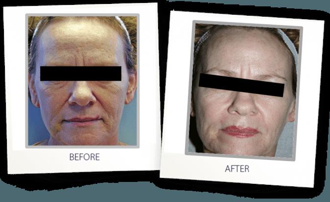 Skin Resurfacing with CO2 laser
