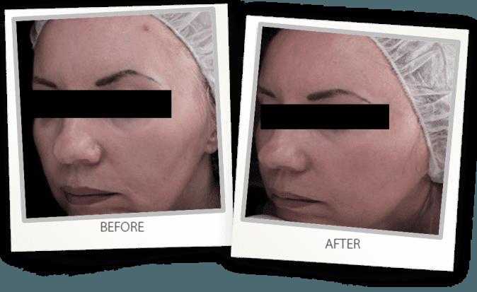 CO2 Skin Rejuvenation
