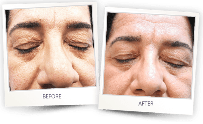 sagging eyelift treatment